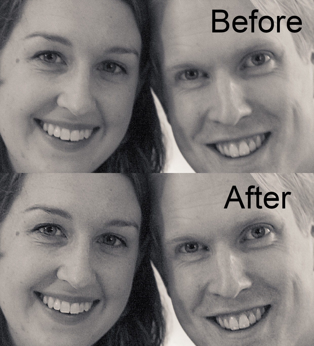 hjorthmedh-shake-reduction-before-after